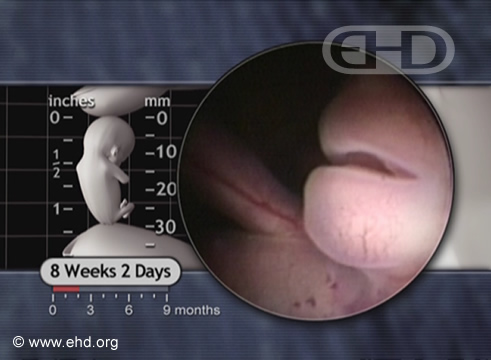 O Maxilar Inferior e o Pescoço [Clique para a próxima imagem]