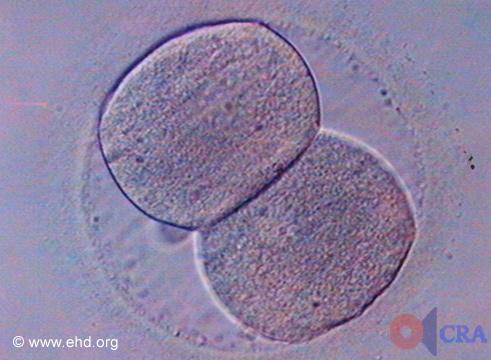 Embrión de dos células [Haga clic para la siguiente imagen]
