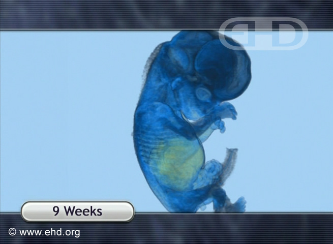 9-Week Fetus, MRI Animation [Click for next image]