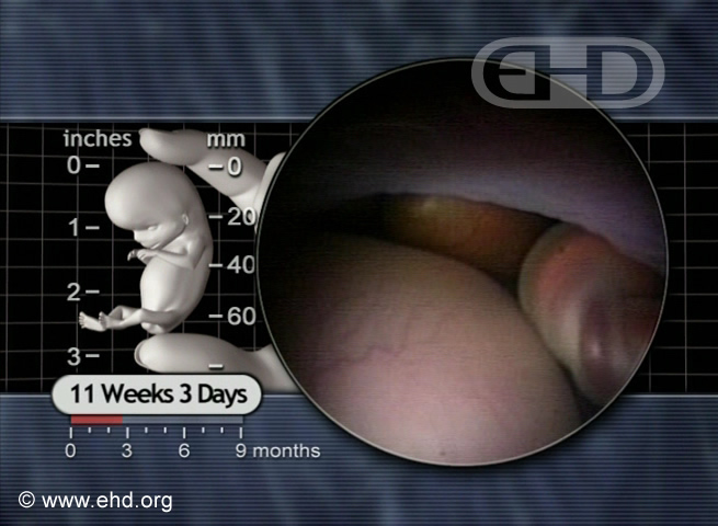 11 weeks, 3 days. Amnion and Umbilical Cord [Click for next image]