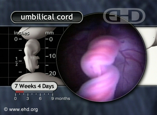 Close-up, Umbilical Cord at 7½ Weeks [Click for next image]
