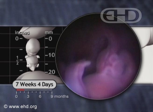 El cordón umbilical a las 7½ semanas [Haga clic para la siguiente imagen]